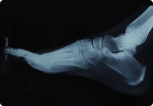 Digital X-Rays For Podiatry Care