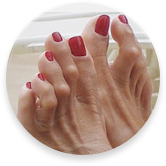 hammertoe treatment