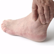 diabetic foot care and treatment
