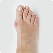 treatment and pain relief for bunions
