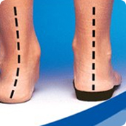 treatment and pain relief for flat feet