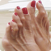 treatment and pain relief for hammertoes