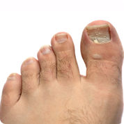 treatment and pain relief for ingrown toenails