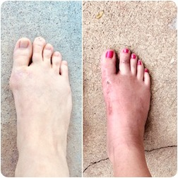 before and after foot pic